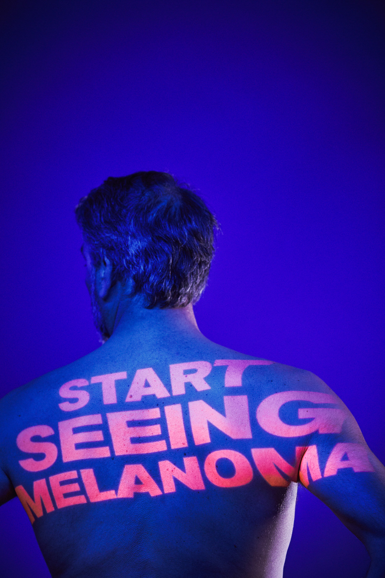 "Start Seeing Melanoma campaign OHSU war on skin cancer Tony. The words projected onto his bare back read ""Start seeing Melanoma"" by Andy Batt"